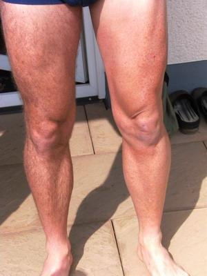 müde beine wie muskelkater